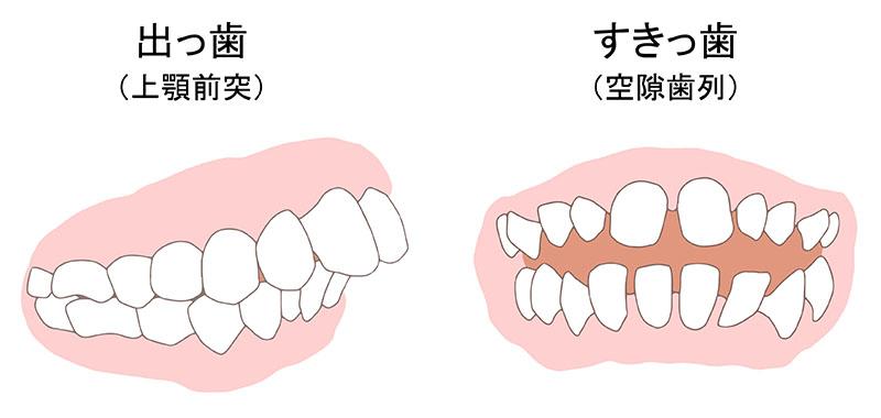 出っ歯 すきっ歯